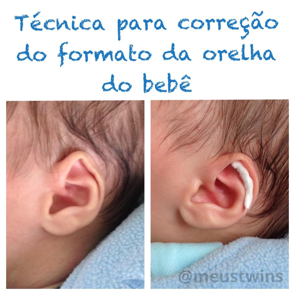 Armario De Banheiro Planejado Pequeno ~ Cuidados estéticos com a orelhinha do seu beb u00ea u2013 Meus twins
